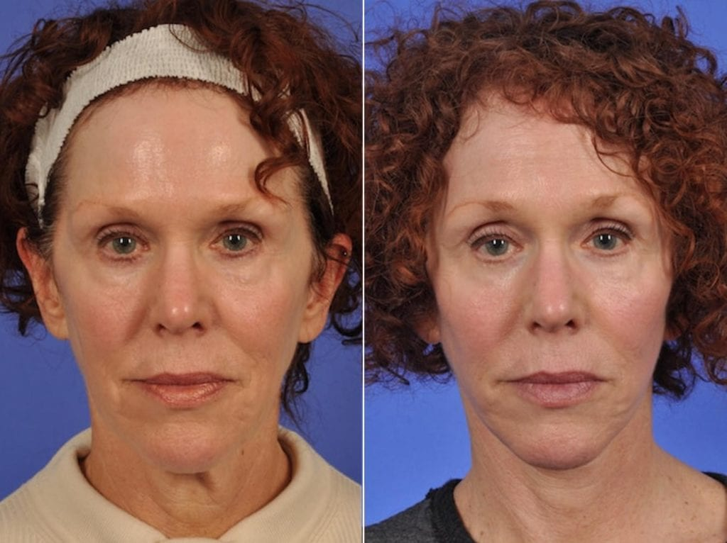 Facelift and Necklift Surgery Before and After Photos in Plymouth, Pennsylvania, Patient 3243