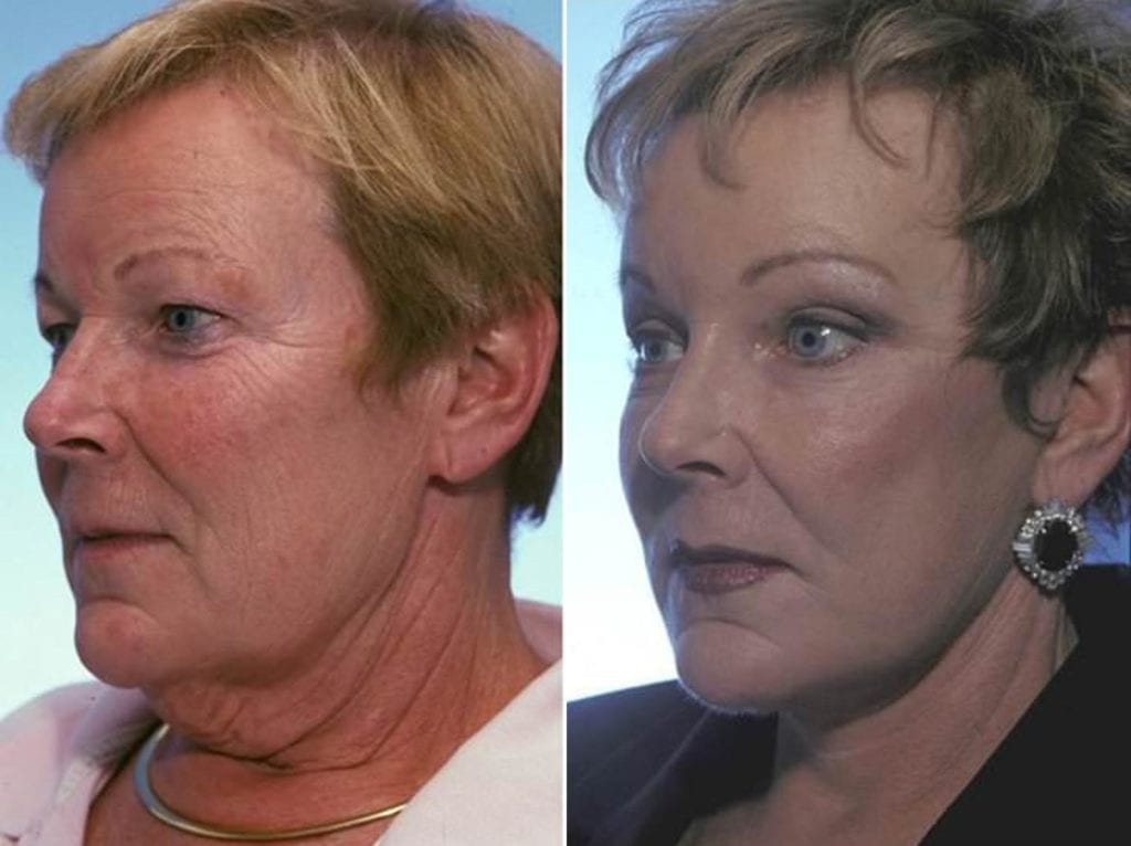 Facelift and Necklift Surgery Before and After Photos in Plymouth, Pennsylvania, Patient 3320