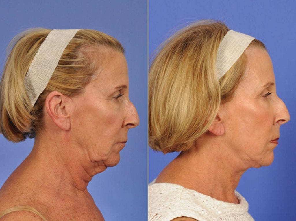 Facelift and Necklift Surgery Before and After Photos in Plymouth, Pennsylvania, Patient 3299