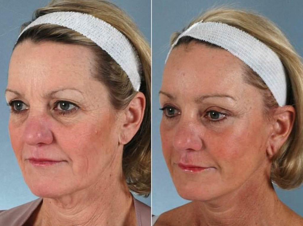 Liposculpture Before and After Photos in Plymouth, Pennsylvania, Patient 3334