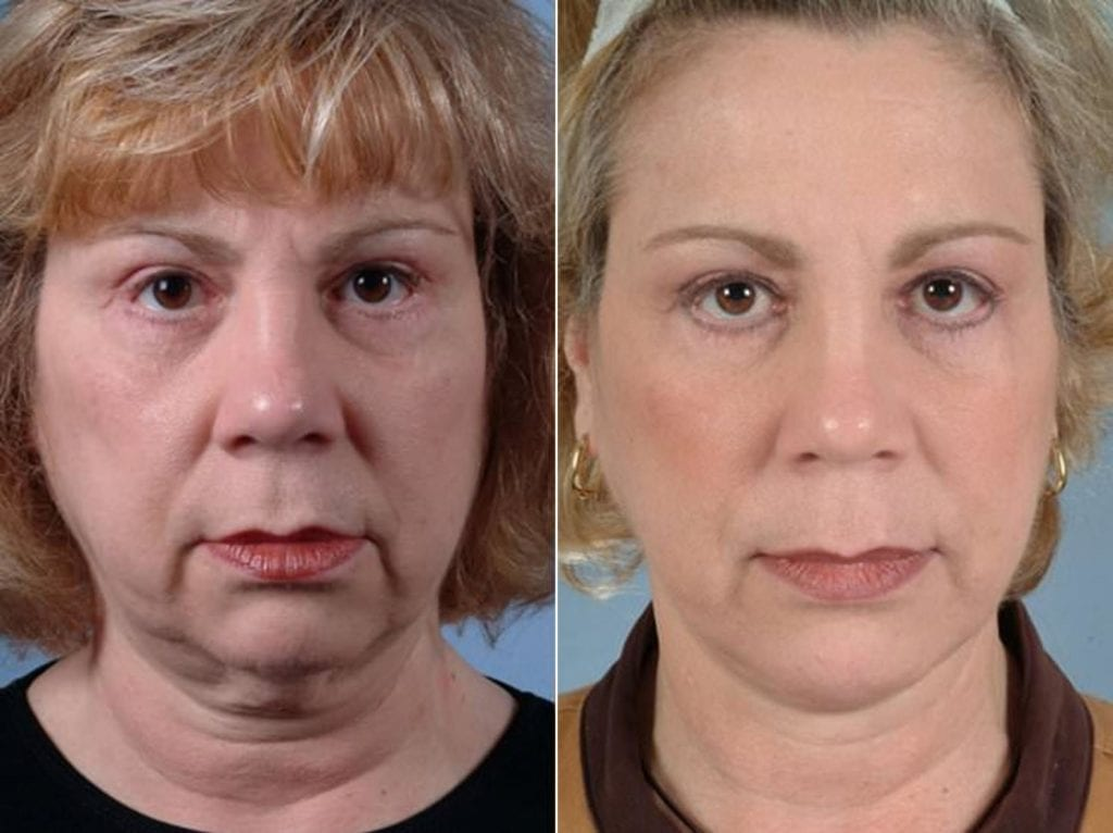 Facelift and Necklift Surgery Before and After Photos in Plymouth, Pennsylvania, Patient 3354