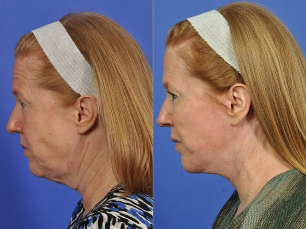 Facelift and Necklift Surgery Before and After Photos in Plymouth, Pennsylvania, Patient 3278