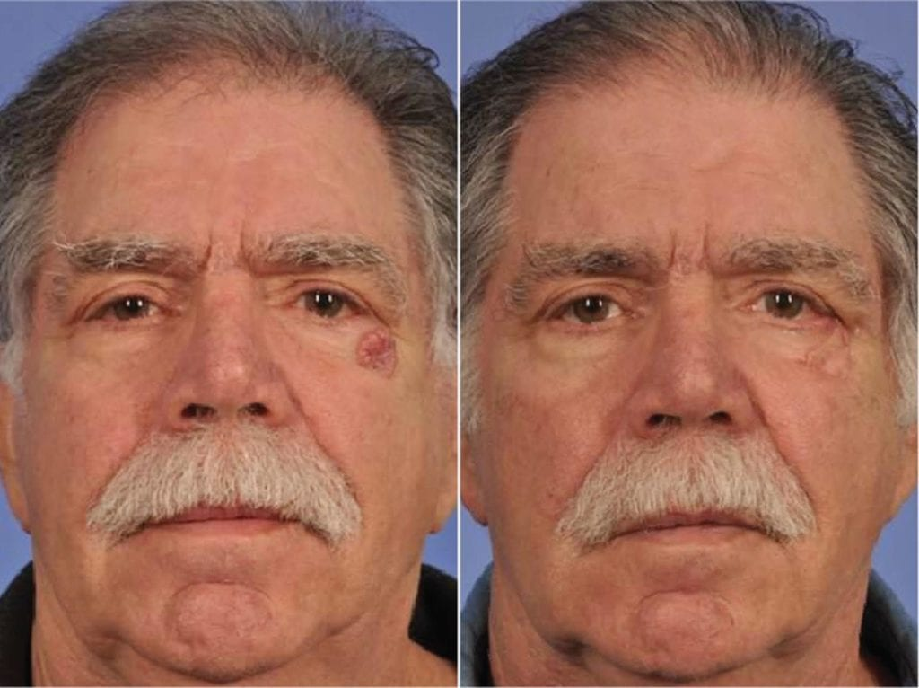 Facial Reconstruction Surgery Before and After Photos in Plymouth, Pennsylvania, Patient 4248