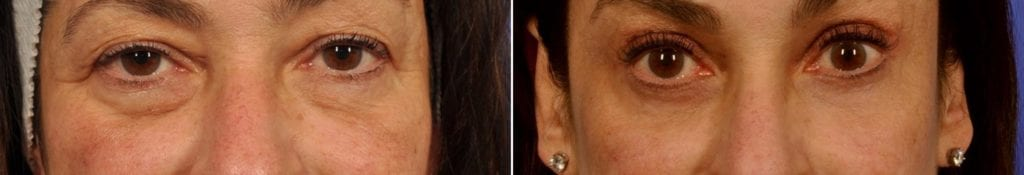 Festoons Before and After Photos in Plymouth, Pennsylvania, Patient 3543
