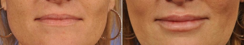 Fillers Before and After Photos in Plymouth, Pennsylvania, Patient 3818