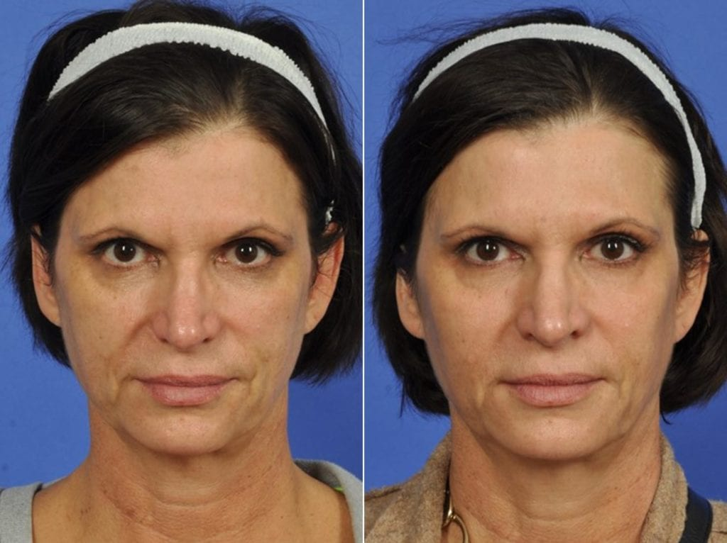 Fillers Before and After Photos in Plymouth, Pennsylvania, Patient 3903