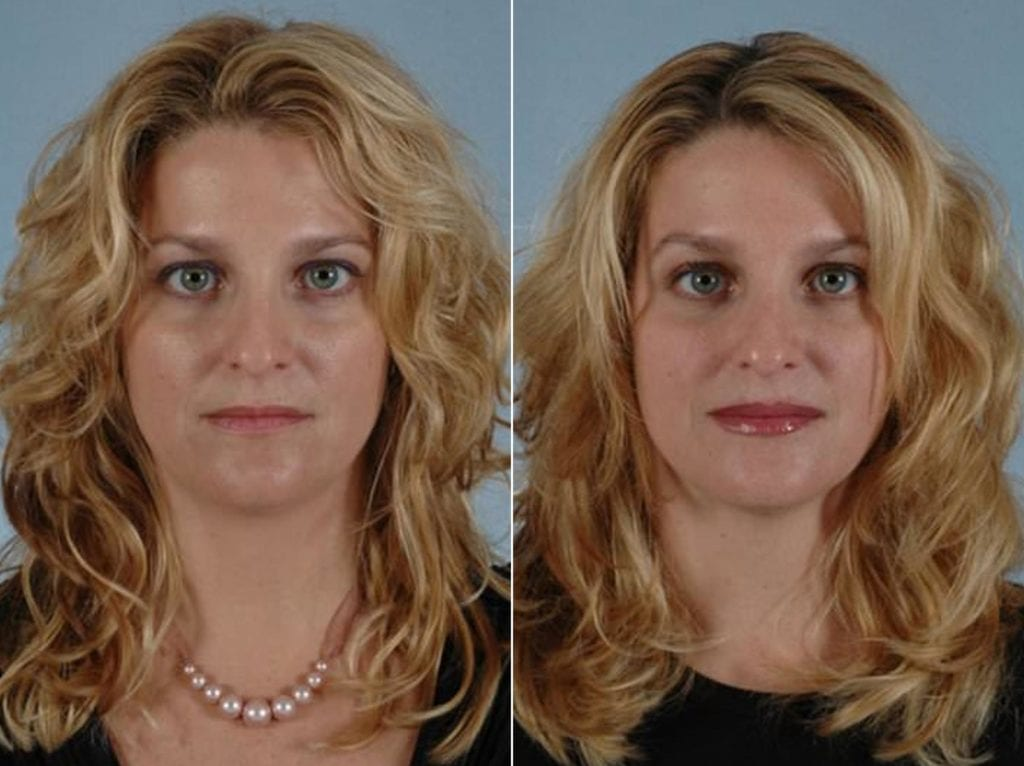 Fillers Before and After Photos in Plymouth, Pennsylvania, Patient 3946