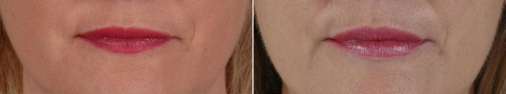 Fillers Before and After Photos in Plymouth, Pennsylvania, Patient 3953