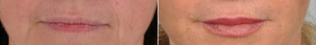 Fillers Before and After Photos in Plymouth, Pennsylvania, Patient 4000
