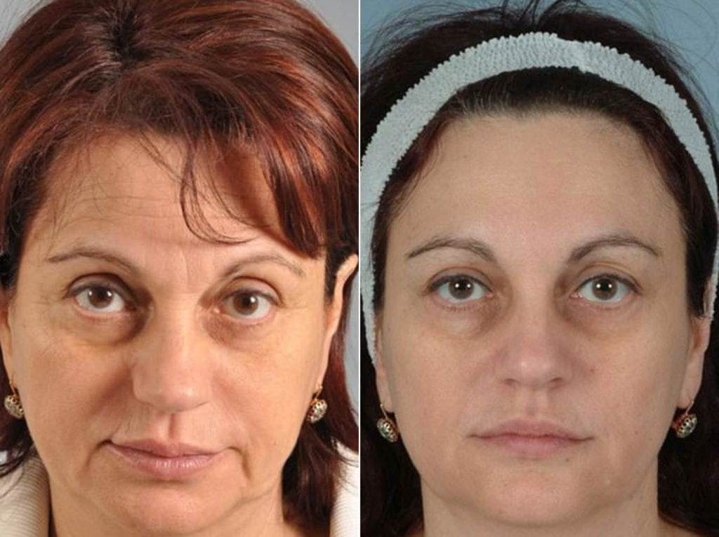 Fillers Before and After Photos in Plymouth, Pennsylvania, Patient 4223