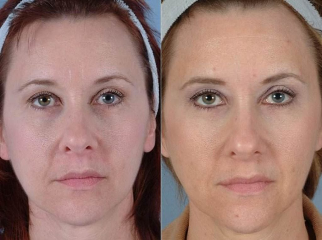 Fillers Before and After Photos in Plymouth, Pennsylvania, Patient 4233