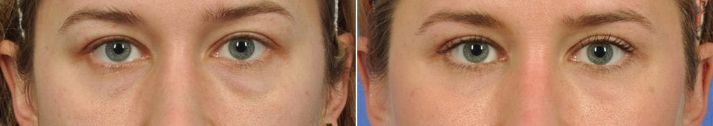 Laser Skin Resurfacing Before and After Photos in Plymouth, Pennsylvania, Patient 3850