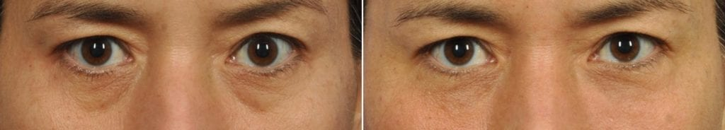 Fillers Before and After Photos in Plymouth, Pennsylvania, Patient 3858