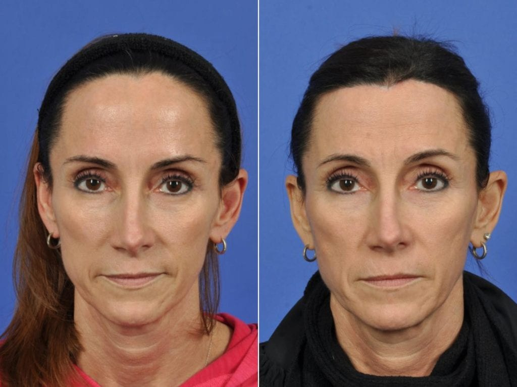 Hair Procedures Before and After Photos in Plymouth, Pennsylvania, Patient 3414
