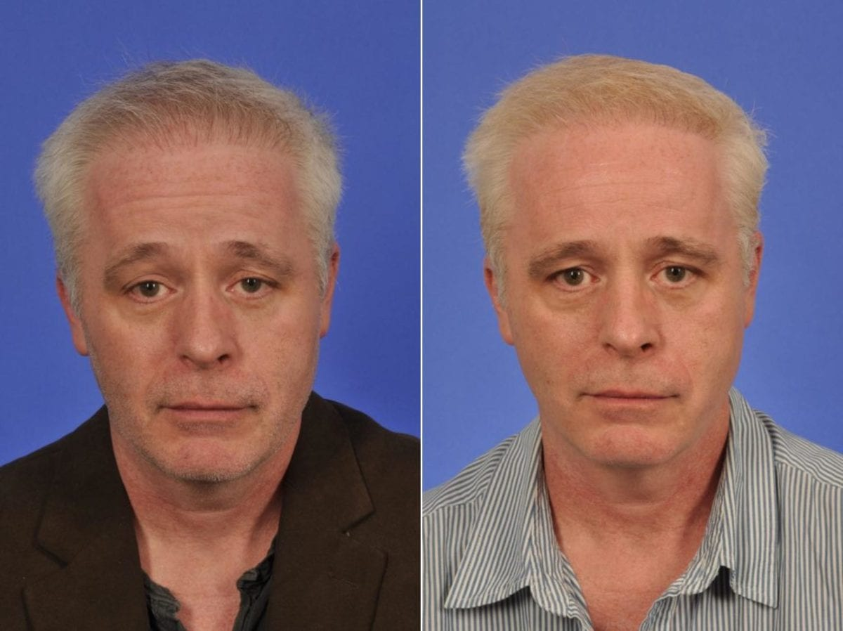 Hair Procedures Before and After Photos in Plymouth, Pennsylvania, Patient 3430