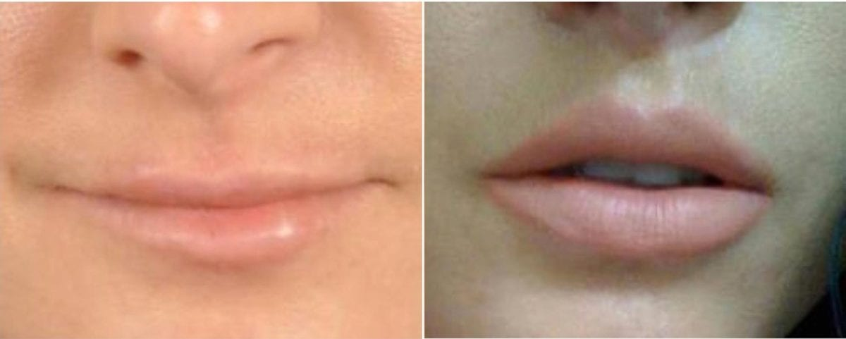 Lip Lift Before and After Photos in Plymouth, Pennsylvania, Patient 3410