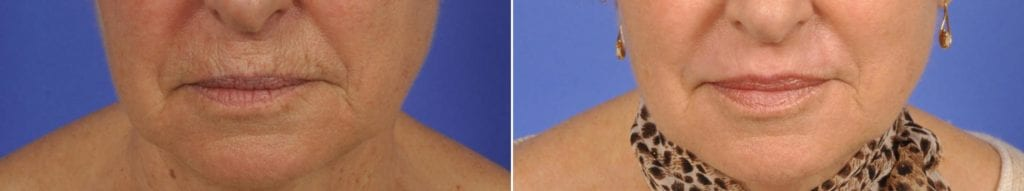 Microneedling Before and After Photos in Plymouth, Pennsylvania, Patient 4065