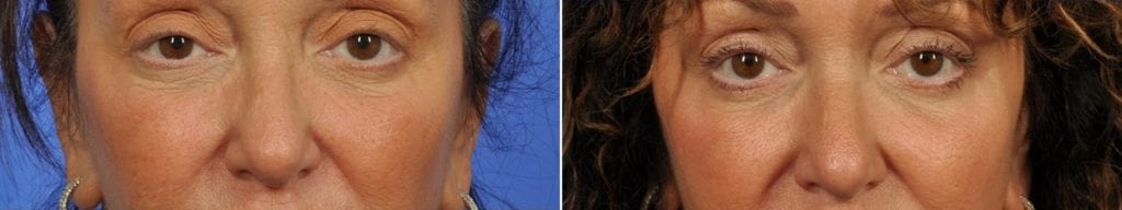 Microneedling Before and After Photos in Plymouth, Pennsylvania, Patient 4003
