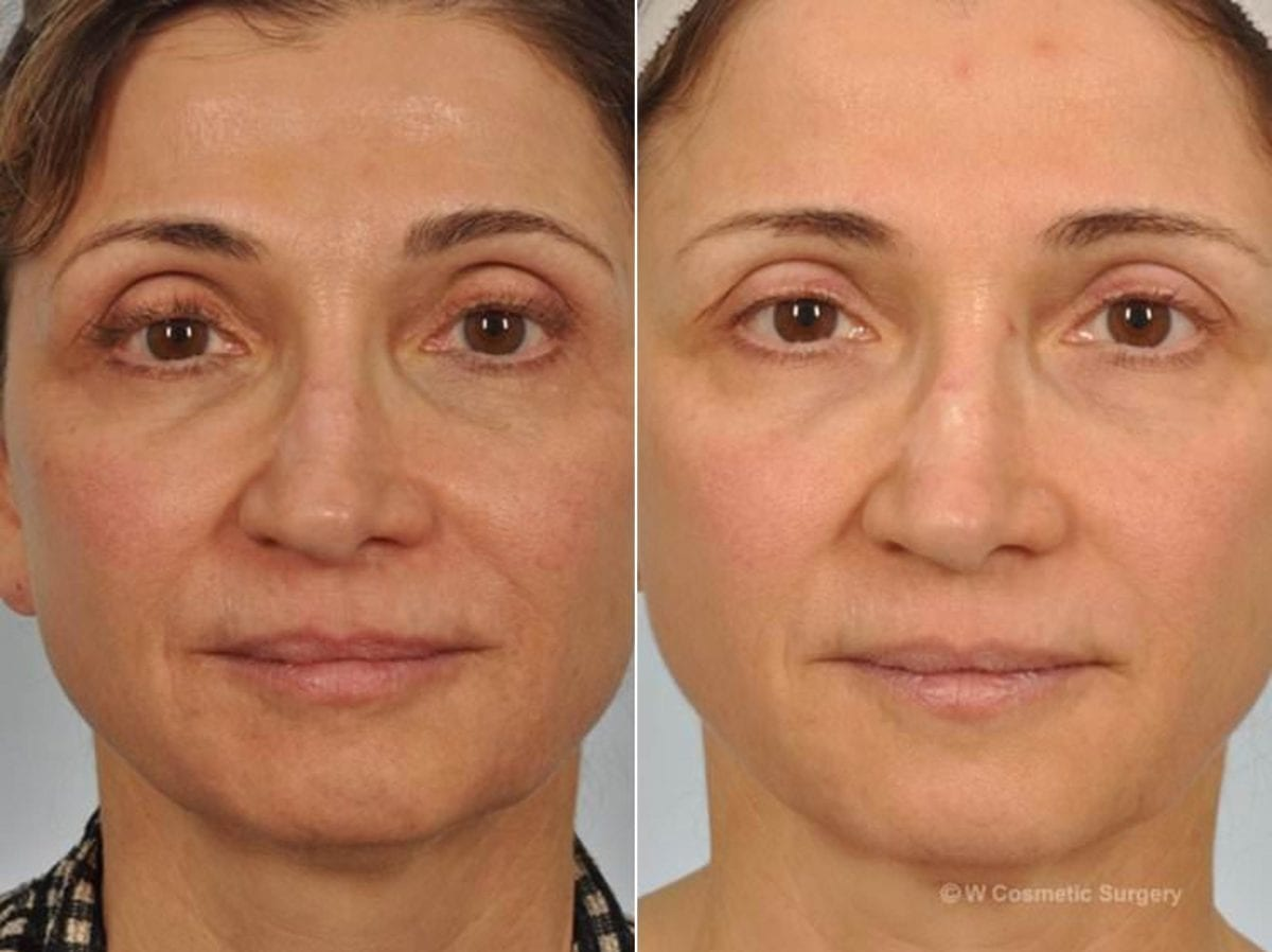 Microneedling Before and After Photos in Plymouth, Pennsylvania, Patient 4046