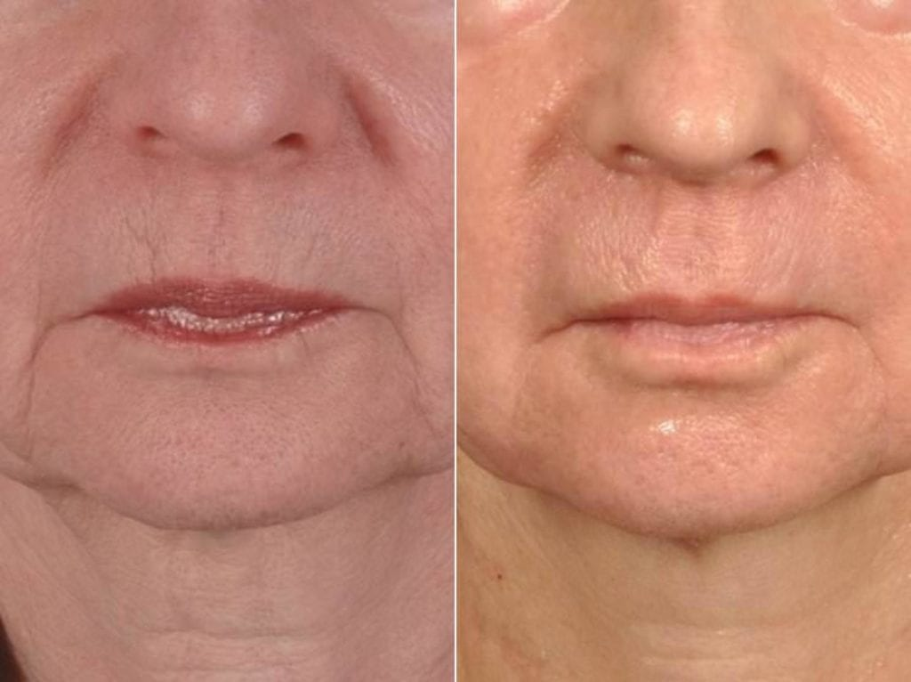 Microneedling Before and After Photos in Plymouth, Pennsylvania, Patient 4054