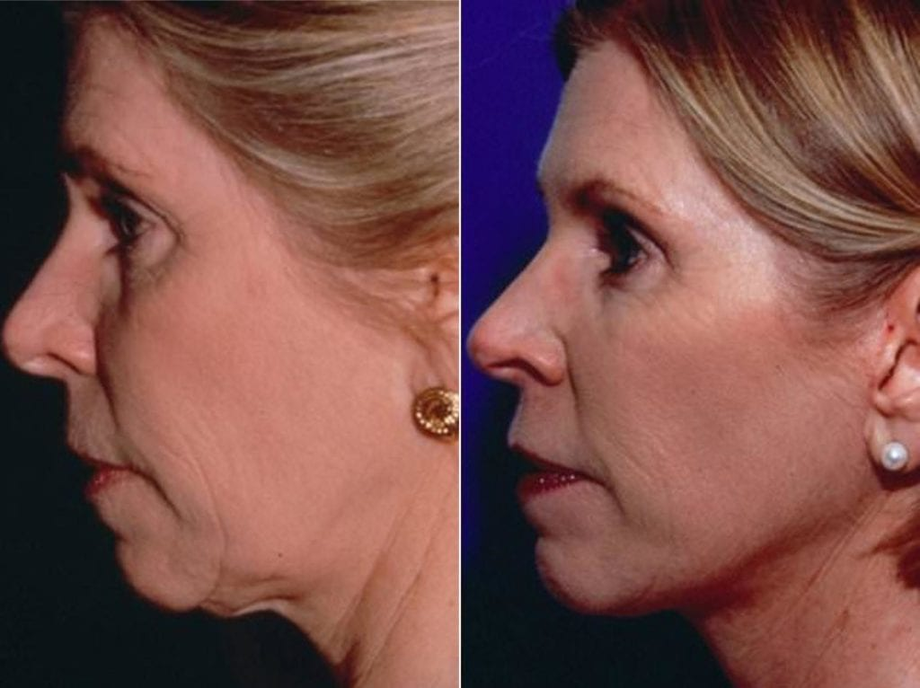 Minimal Incision Facelift Before and After Photos in Plymouth, Pennsylvania, Patient 3193