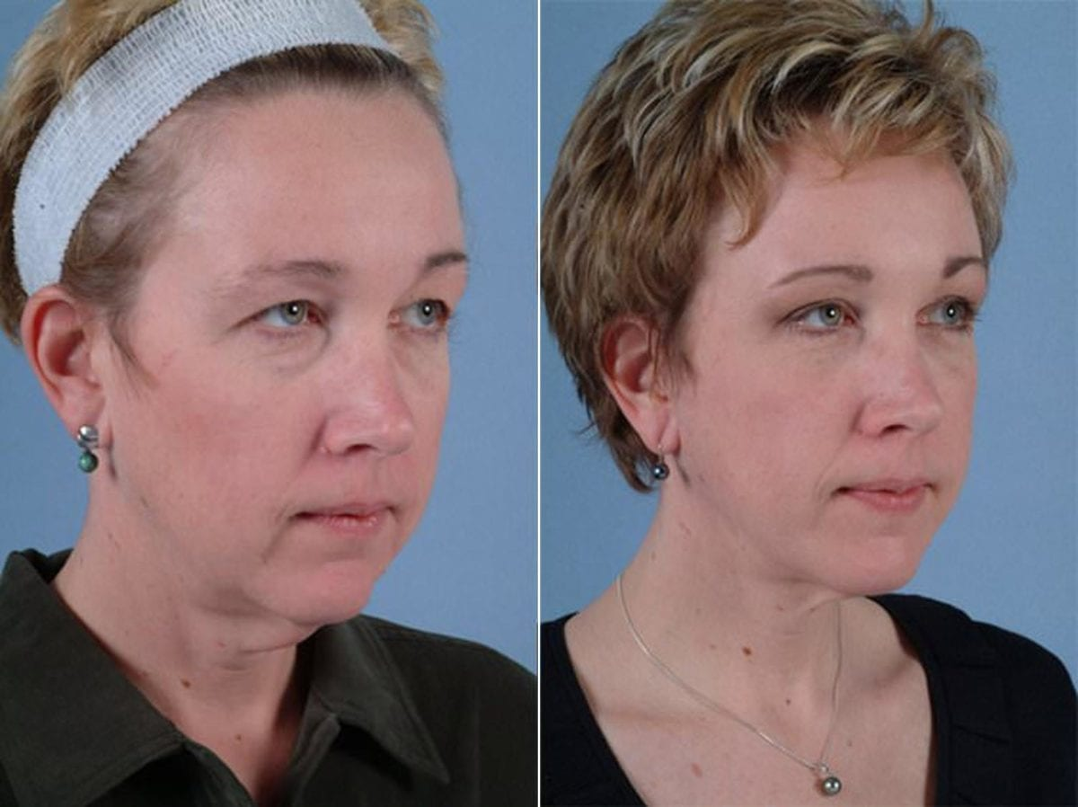 Minimal Incision Facelift Before and After Photos in Plymouth, Pennsylvania, Patient 3210