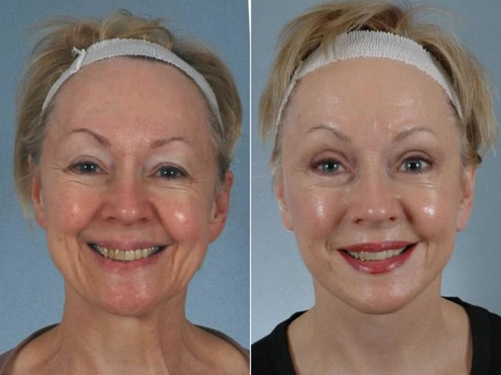 Minimal Incision Facelift Before and After Photos in Plymouth, Pennsylvania, Patient 3172
