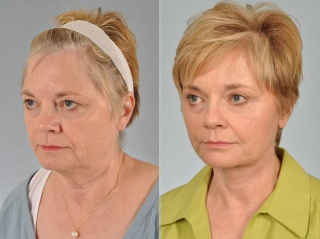 Cosmetic Blepharoplasty Before and After Photos in Plymouth, Pennsylvania, Patient 2895
