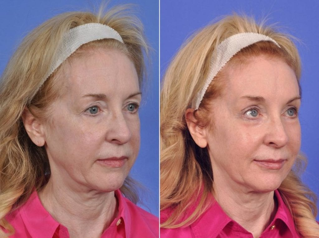 ThermiTight Before and After Photos in Plymouth, Pennsylvania, Patient 2989
