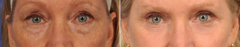 Cosmetic Blepharoplasty Before and After Photos in Plymouth, Pennsylvania, Patient 3657