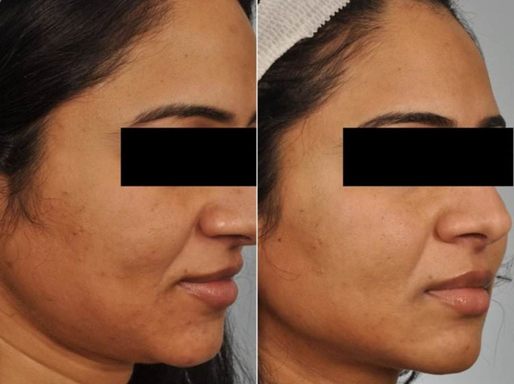 Peels and Microdermabrasion Before and After Photos in Plymouth, Pennsylvania, Patient 4103