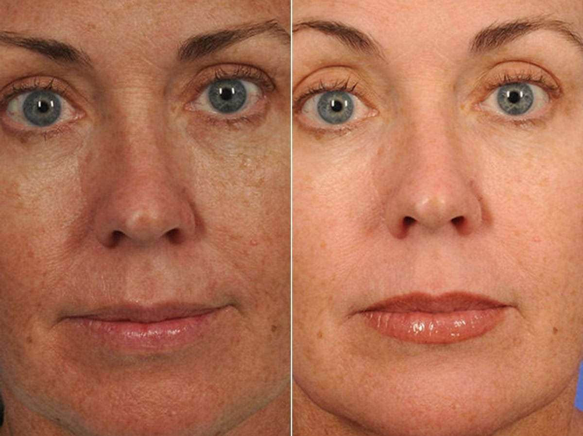 Peels and Microdermabrasion Before and After Photos in Plymouth, Pennsylvania, Patient 4257
