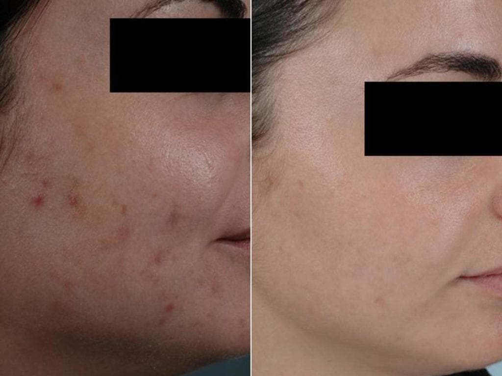 Peels and Microdermabrasion Before and After Photos in Plymouth, Pennsylvania, Patient 4099