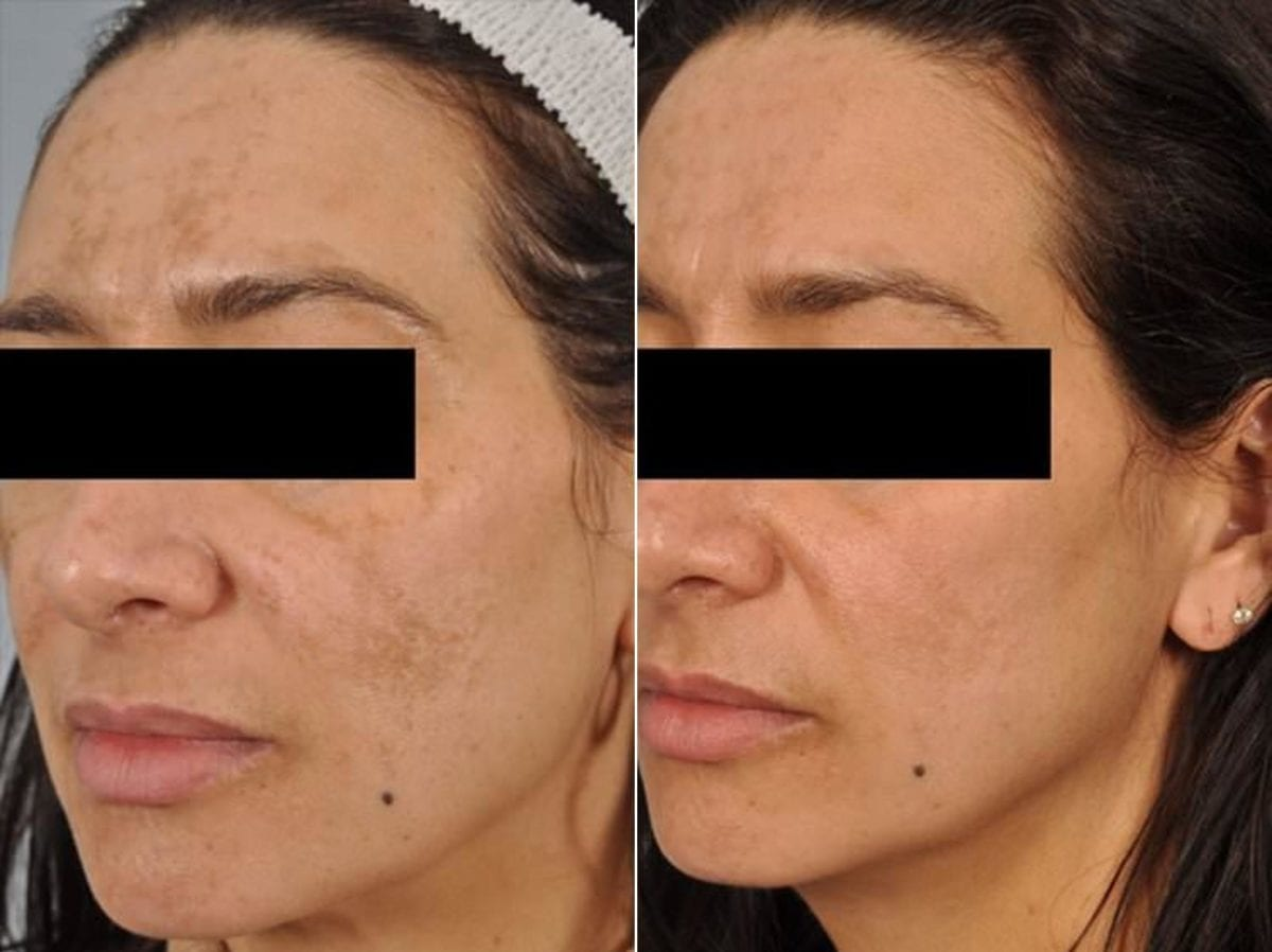 Peels and Microdermabrasion Before and After Photos in Plymouth, Pennsylvania, Patient 4107