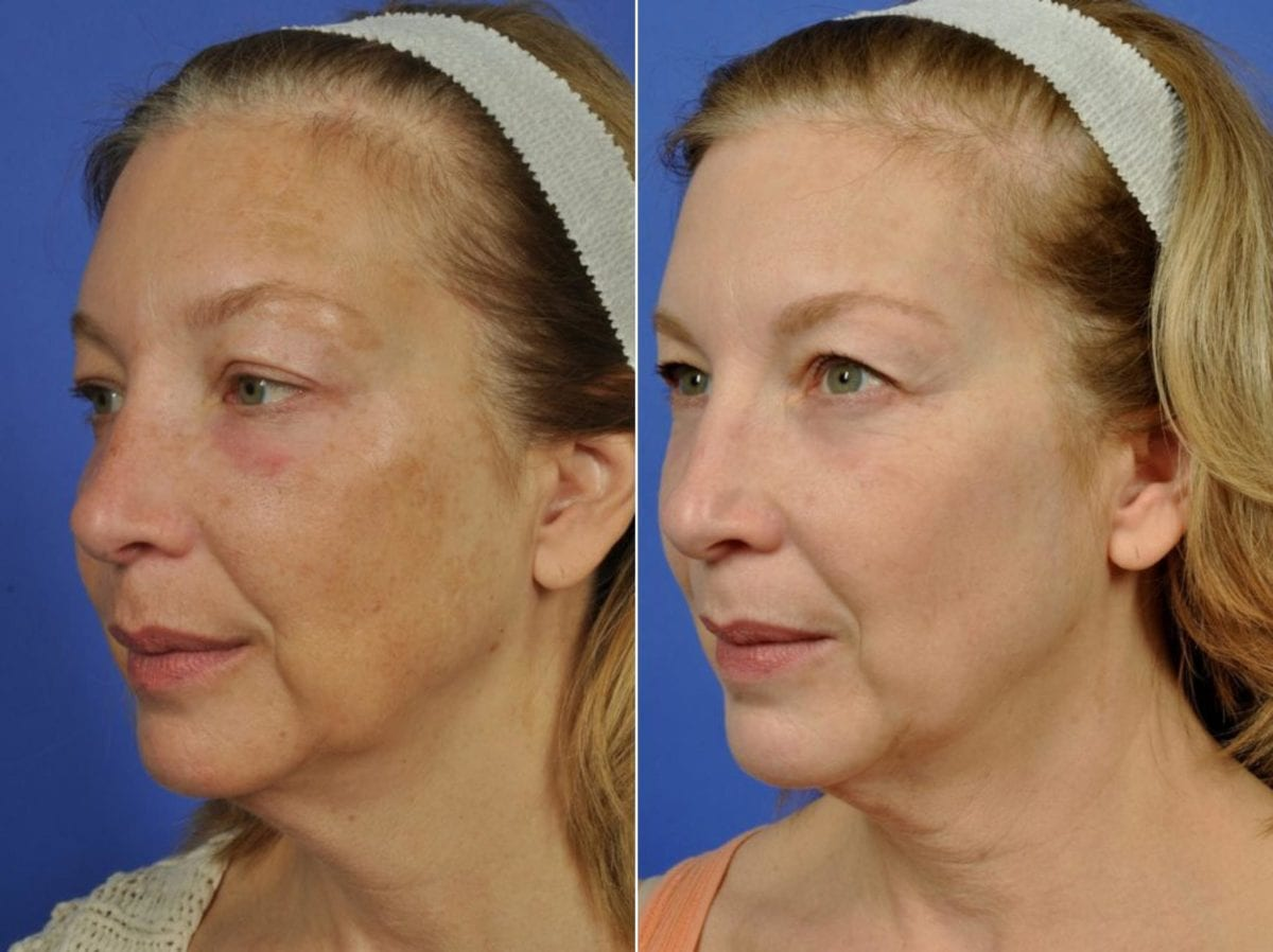 Phototherapy – BBL/IPL Before and After Photos in Plymouth, Pennsylvania, Patient 4142