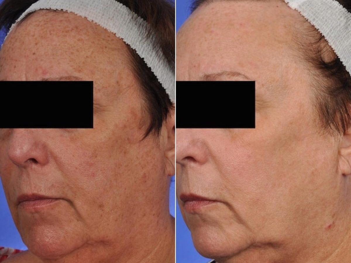 Phototherapy – BBL/IPL Before and After Photos in Plymouth, Pennsylvania, Patient 4177