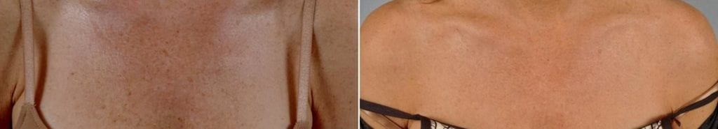 Phototherapy – BBL/IPL Before and After Photos in Plymouth, Pennsylvania, Patient 4199
