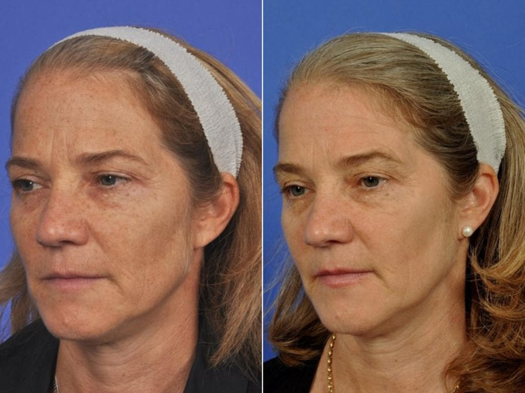 Phototherapy – BBL/IPL Before and After Photos in Plymouth, Pennsylvania, Patient 4149