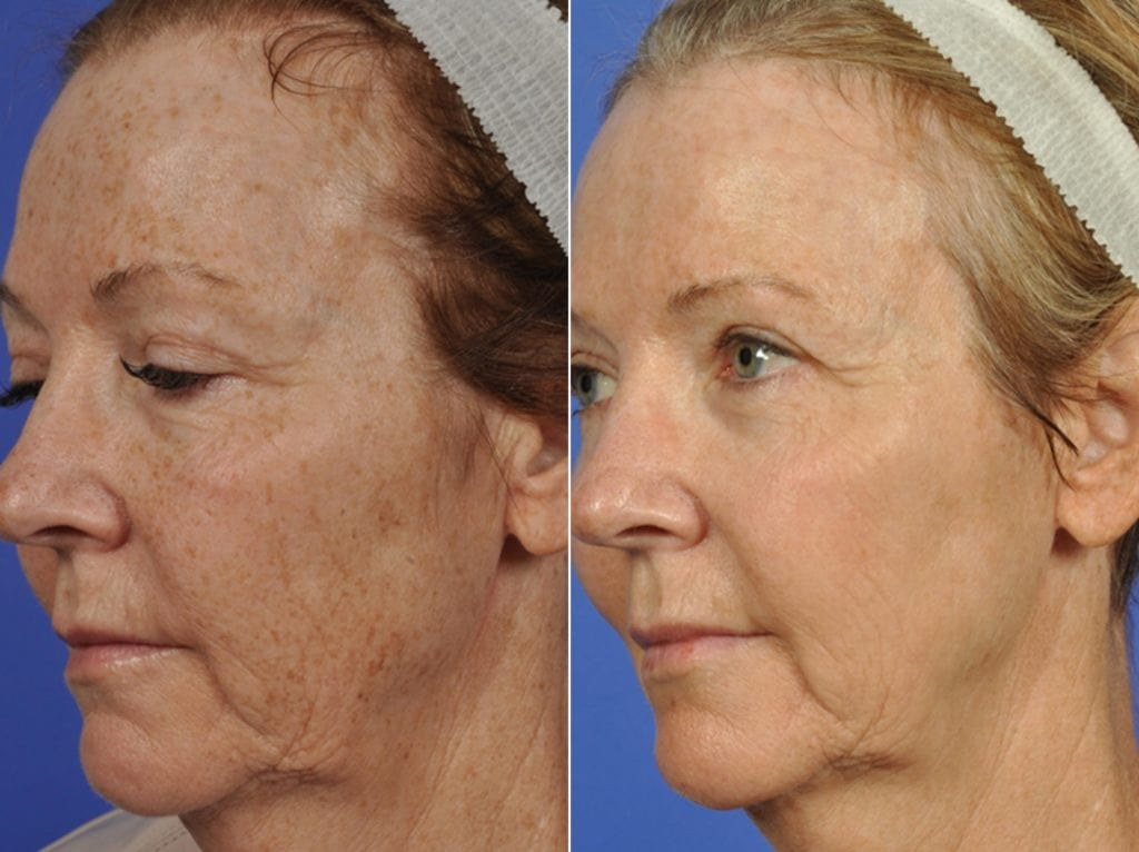 Phototherapy – BBL/IPL Before and After Photos in Plymouth, Pennsylvania, Patient 4156