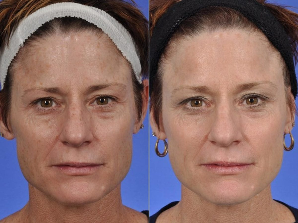 Phototherapy – BBL/IPL Before and After Photos in Plymouth, Pennsylvania, Patient 4160