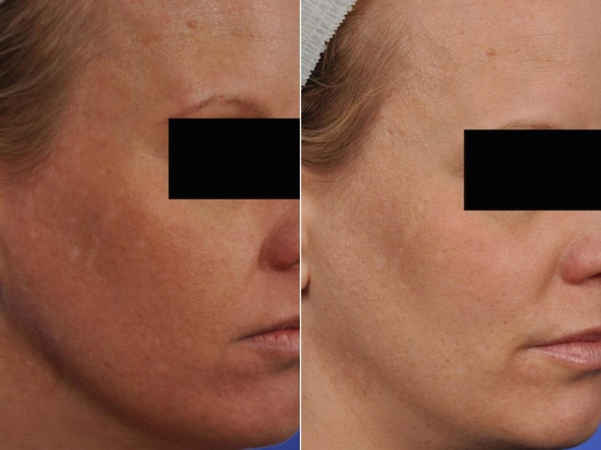 Phototherapy – BBL/IPL Before and After Photos in Plymouth, Pennsylvania, Patient 4173