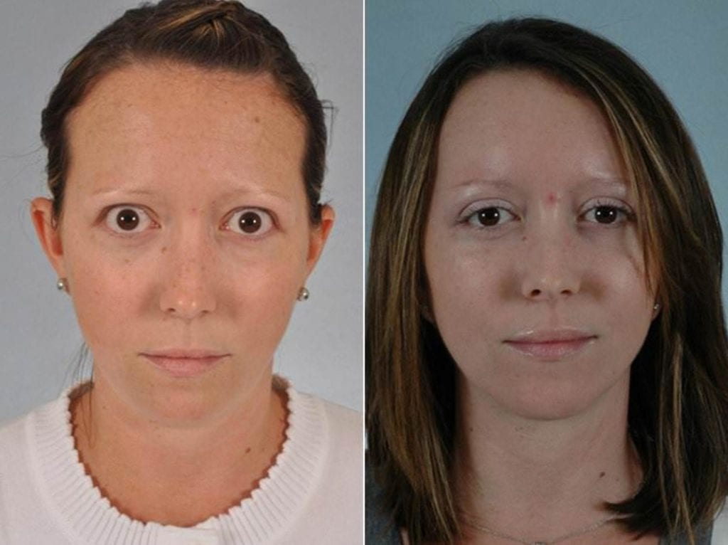 Thyroid Eye Before and After Photos in Plymouth, Pennsylvania, Patient 3438