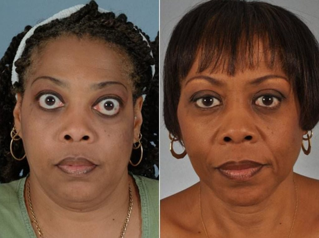 Thyroid Eye Before and After Photos in Plymouth, Pennsylvania, Patient 3434