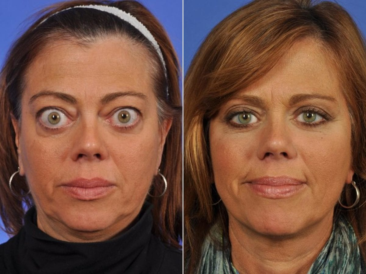 Thyroid Eye Before and After Photos in Plymouth, Pennsylvania, Patient 3442