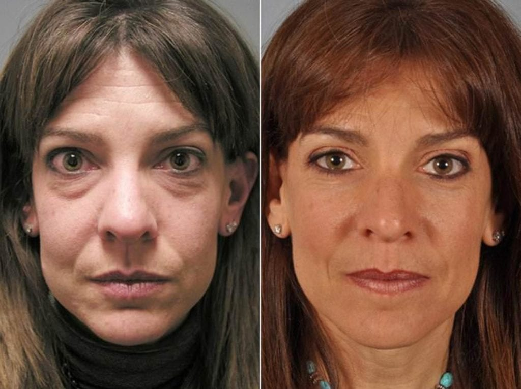 Cosmetic Blepharoplasty Before and After Photos in Plymouth, Pennsylvania, Patient 3449