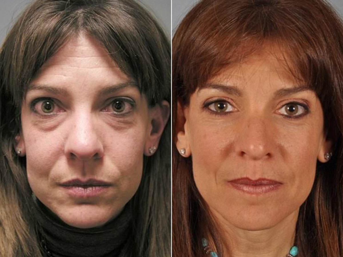 Cosmetic Blepharoplasty Thyroid Eye Photos Plymouth