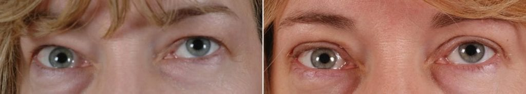 Cosmetic Blepharoplasty Before and After Photos in Plymouth, Pennsylvania, Patient 3464