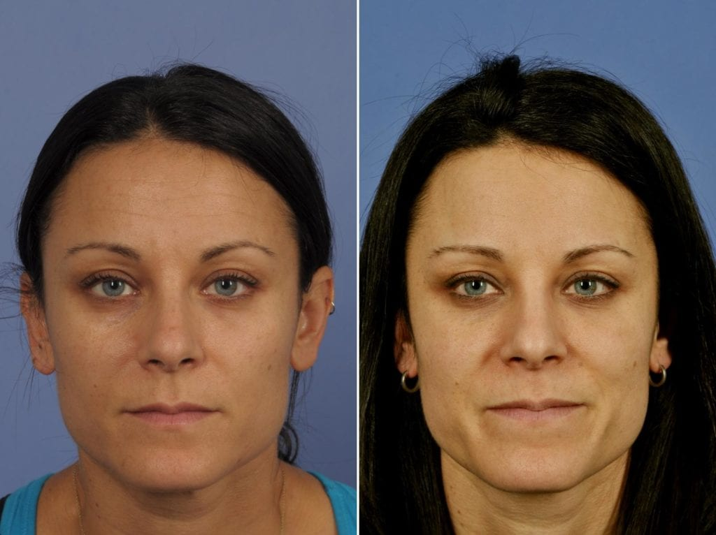Botox Before and After Photos in Plymouth, Pennsylvania, Patient 4366
