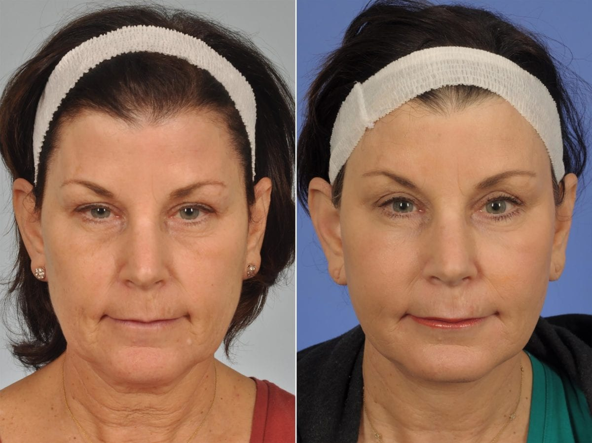 Cosmetic Blepharoplasty Before and After Photos in Plymouth, Pennsylvania, Patient 4343