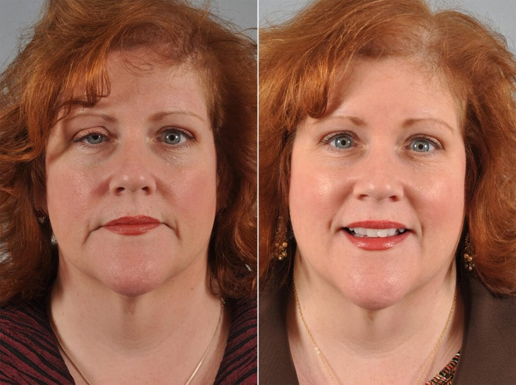 Droopy Eyelids – Ptosis Surgery Before and After Photos in Plymouth, Pennsylvania, Patient 4311